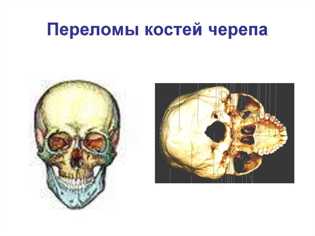 Как определить и лечить перелом черепа