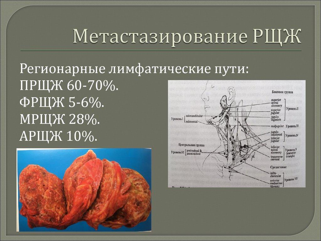 Щитовидная железа и беременность компетентно о здоровье