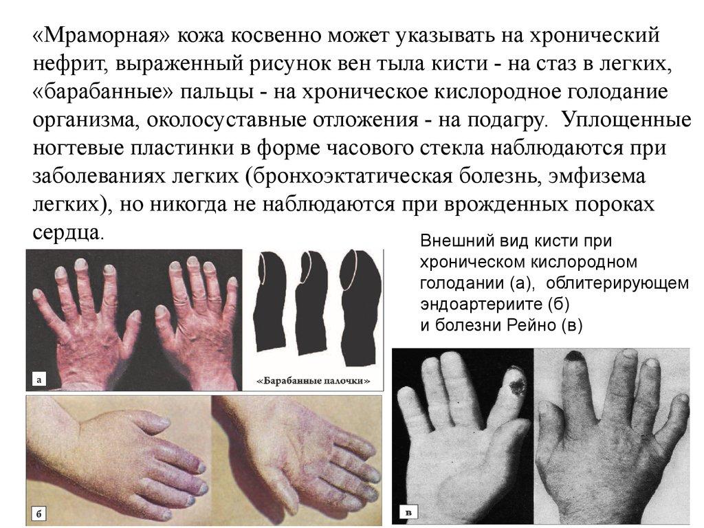 Кровь из вены ребенку 3 года