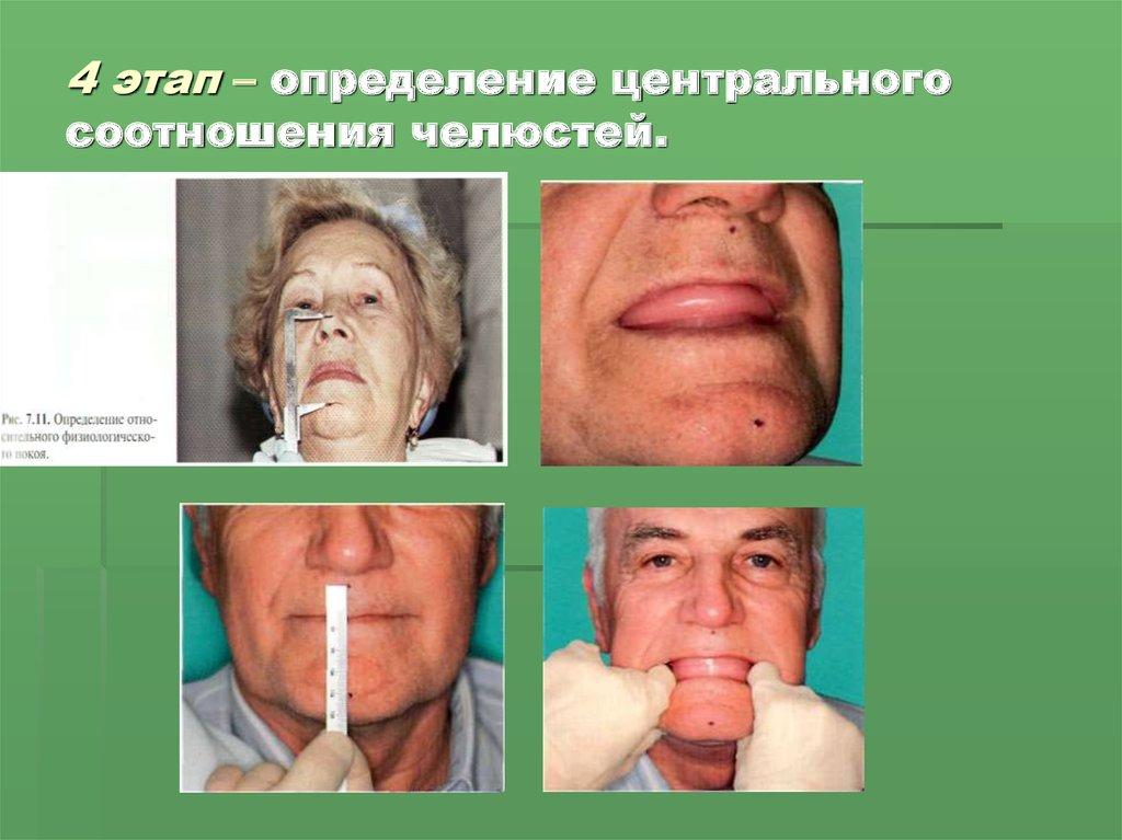 физиологический метод похудения отзывы