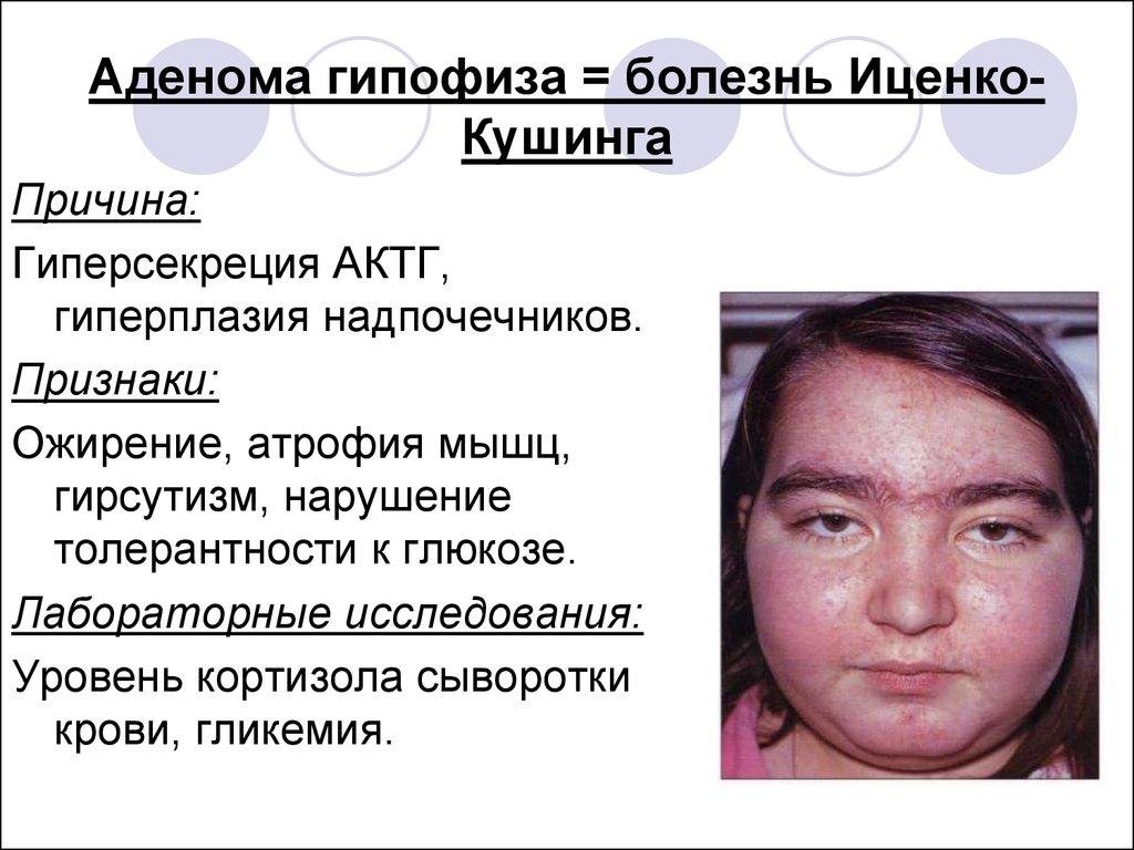 Синдром аденома гипофиза