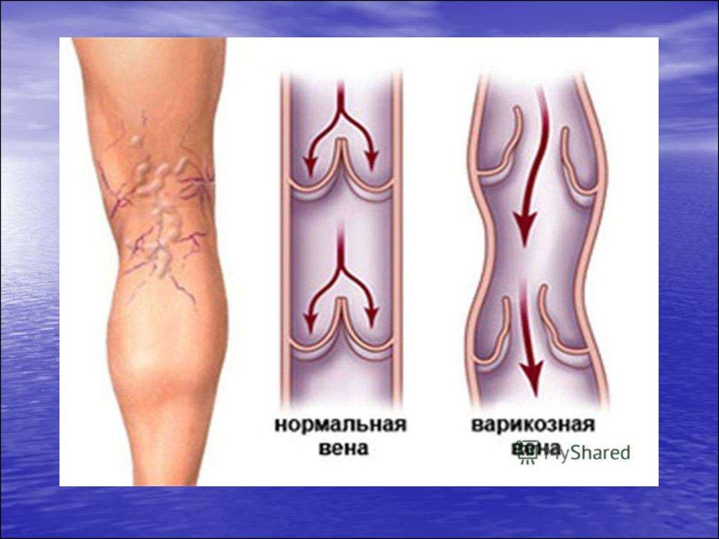Классическая операция варикозного расширения вен