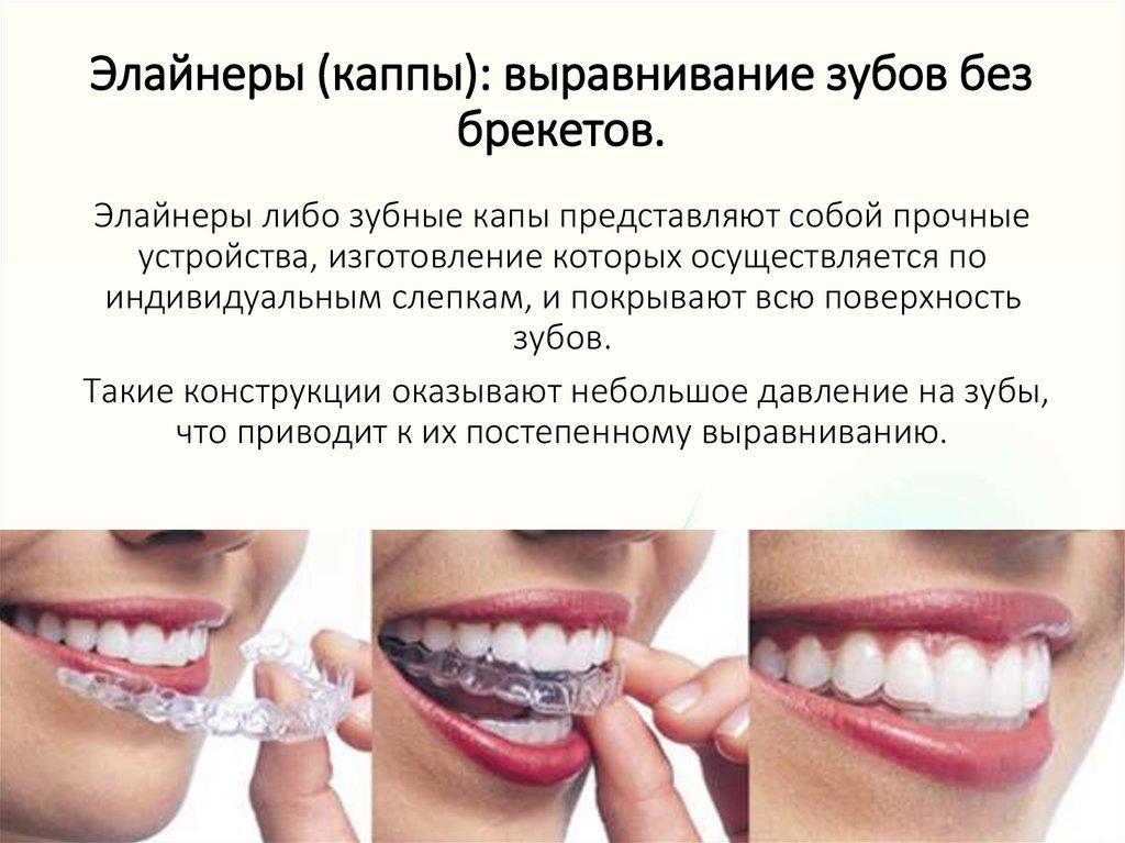 Как выравнивать зубы без брекетов