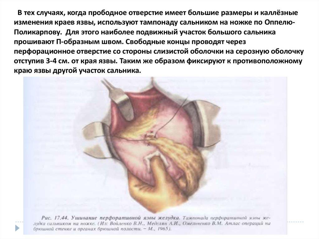 Боли в почках при беременности какое лечение