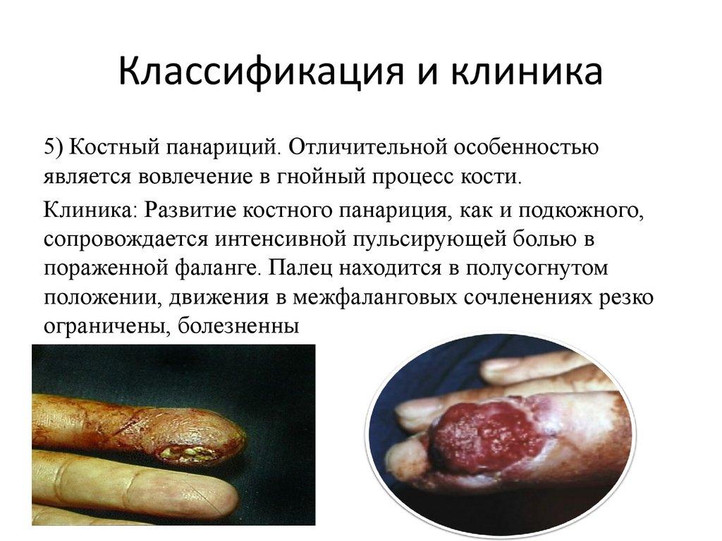 Пальцы ног болят суставы в пальцах лечение