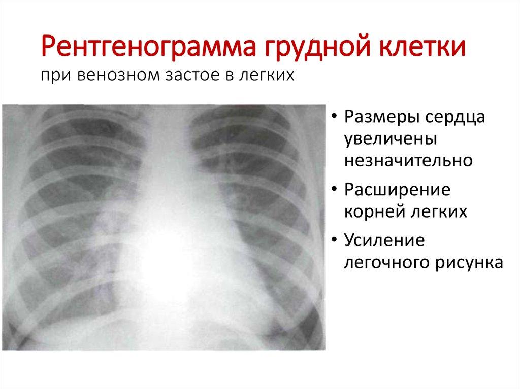 На рентгенограмме усиление легочного рисунка