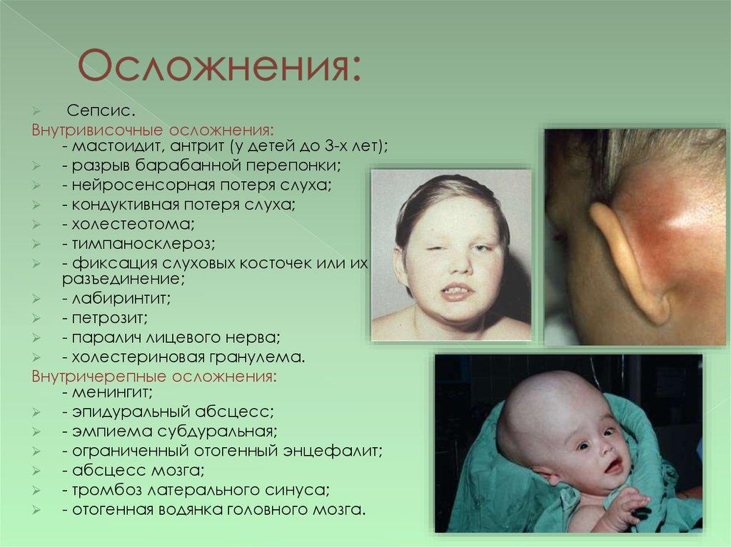 Сепсис симптомы у детей