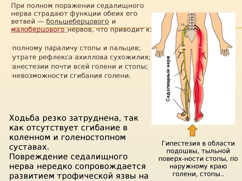 Невропатия большеберцового и малоберцового нервов