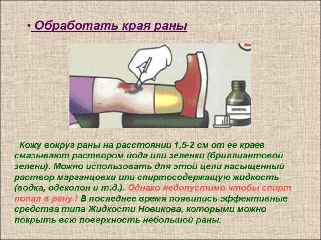 Чем обработать открытую рану в домашних условиях 303