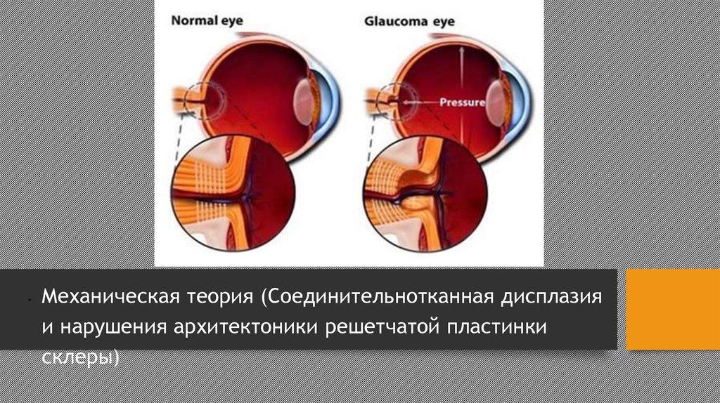 Лазерная коррекция зрения миопия средней степени
