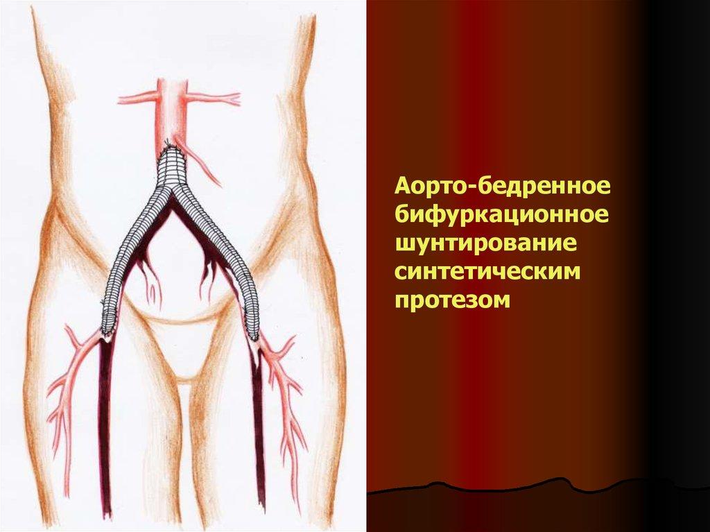 Ишемия сердца  причины симптомы и лечение ишемии сердца
