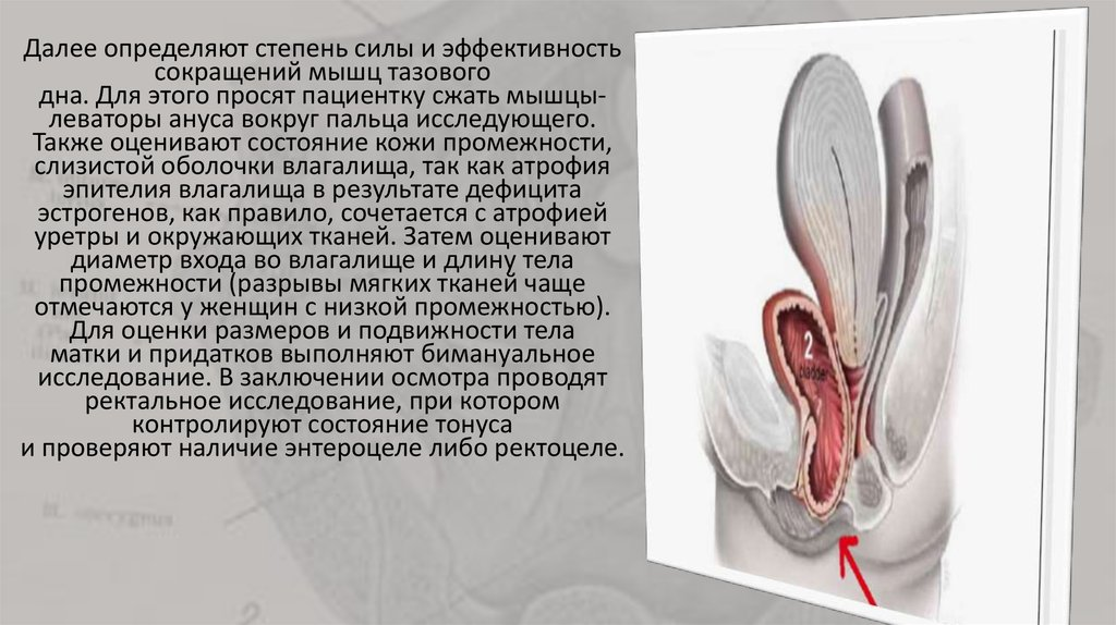 stishki-smeshnie-eroticheskie