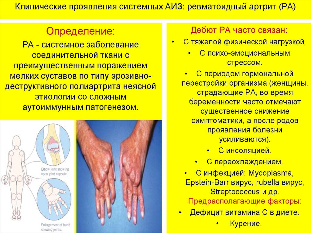 заболевания суставов ревматоидный артрит