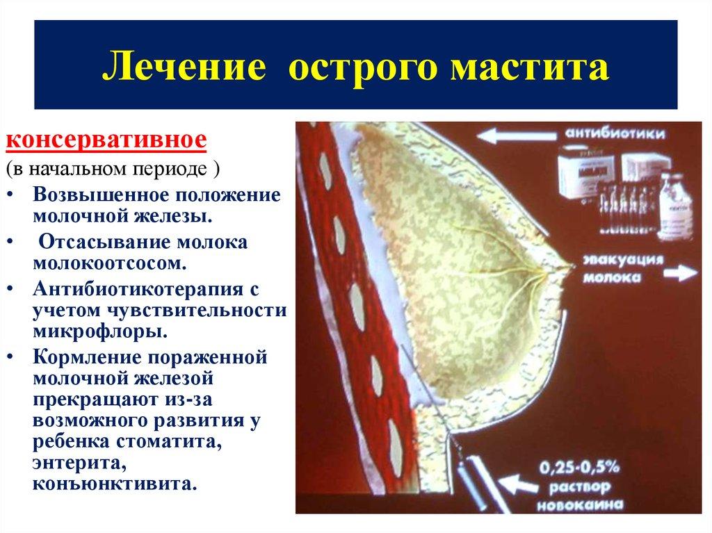 Заболевания молочной железы - online presentation