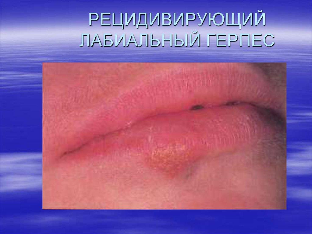 Методы обследования больных с заболеваниями слизистой оболочки полости рта - презентация онлайн