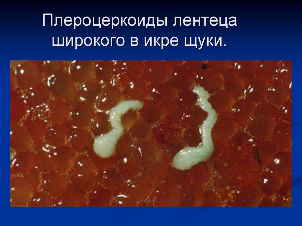 ленточные черви паразиты человека