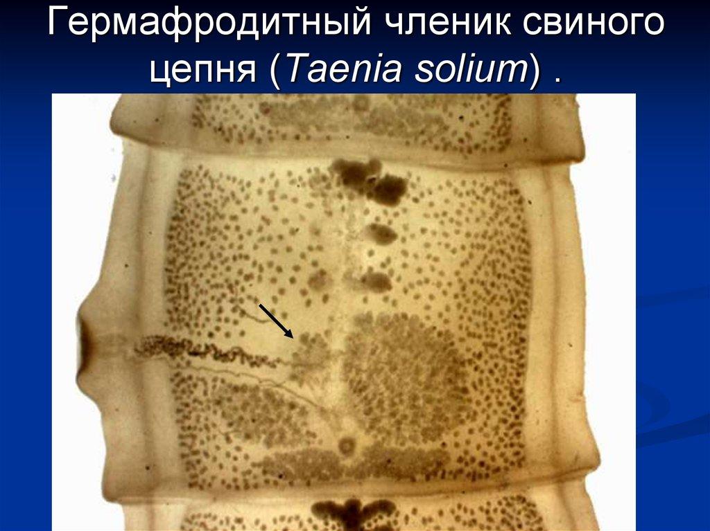ленточные черви паразиты лечение