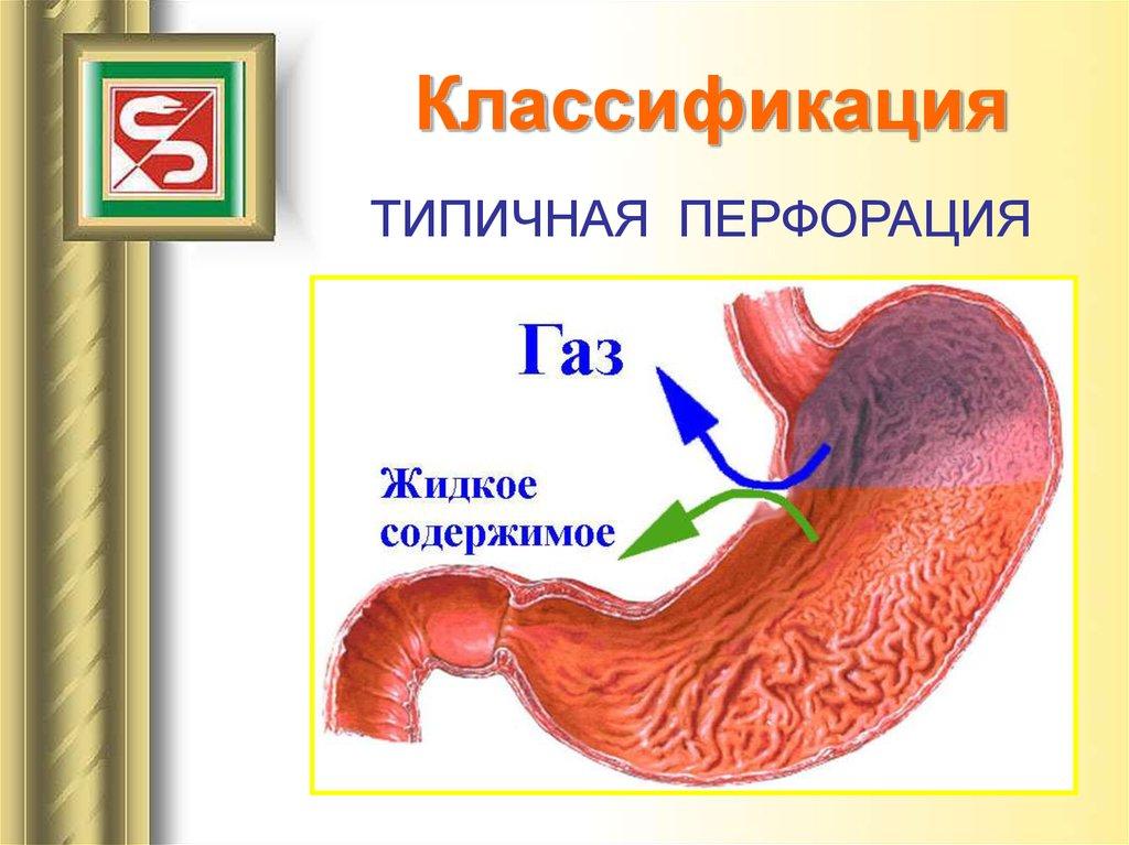 Симптомы больного желудка