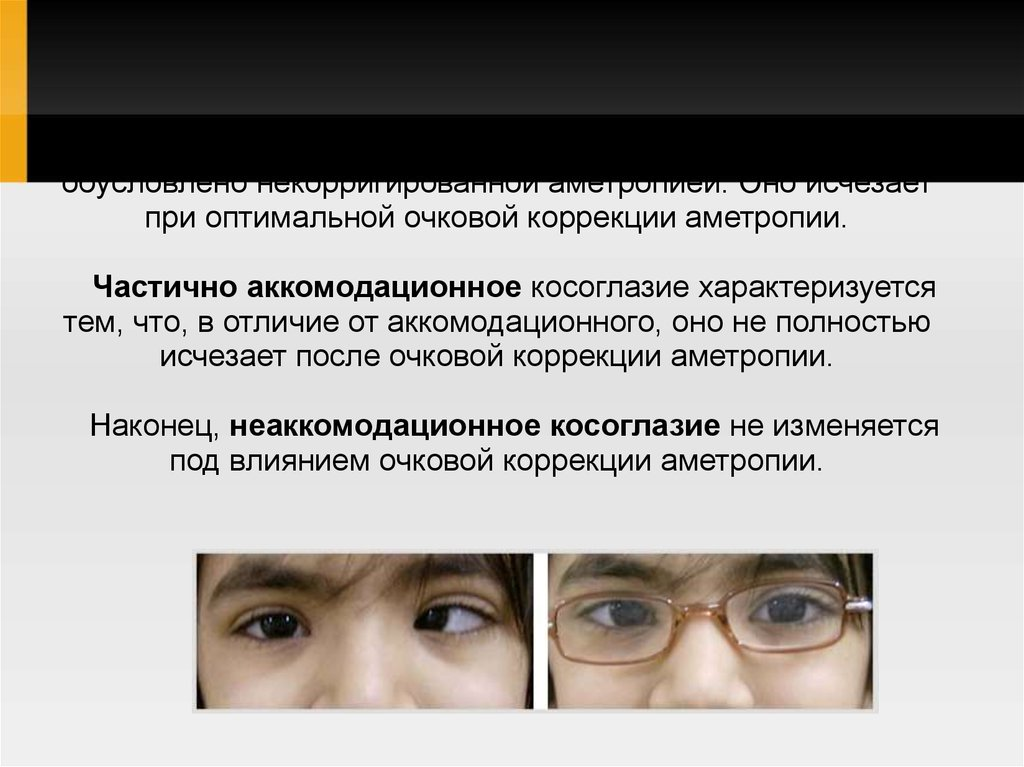 Астигматизм глаз у ребенка и его лечение