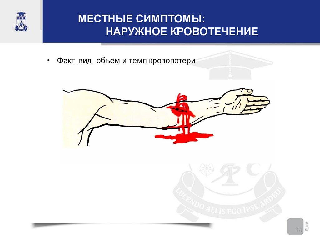 Кровотечение наружное