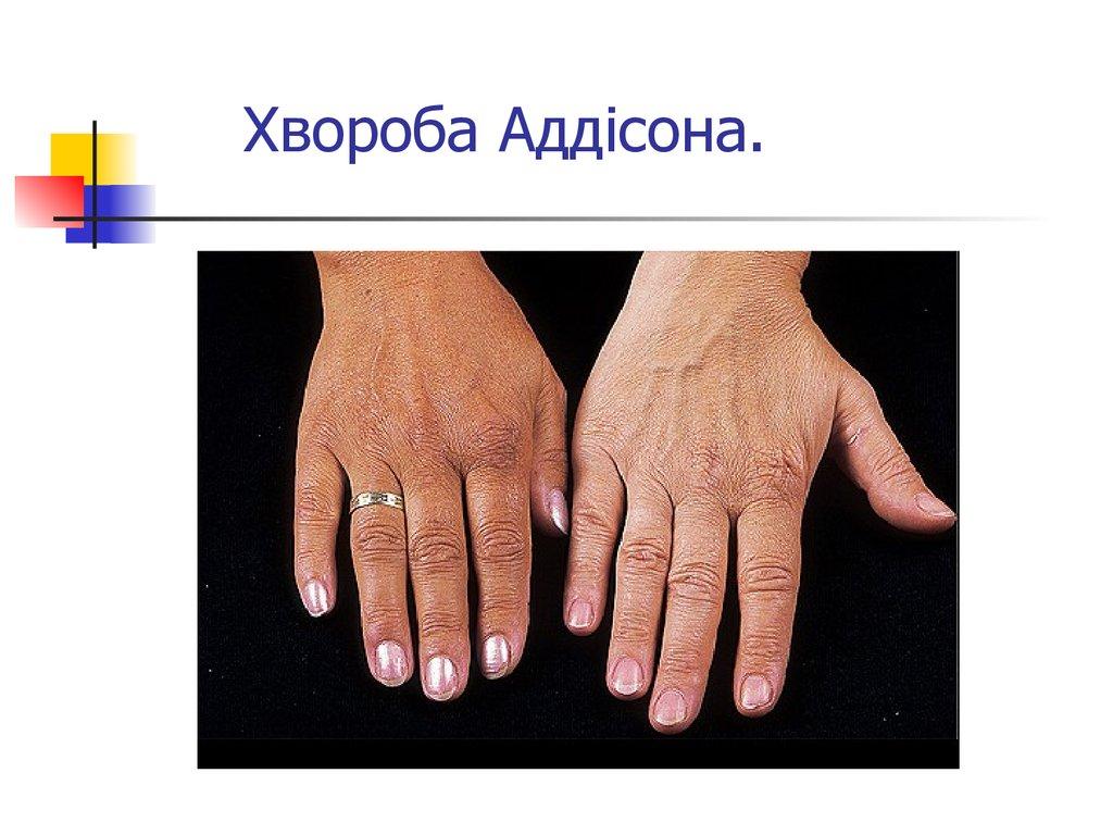 Заболевание при котором бронзовая кожа