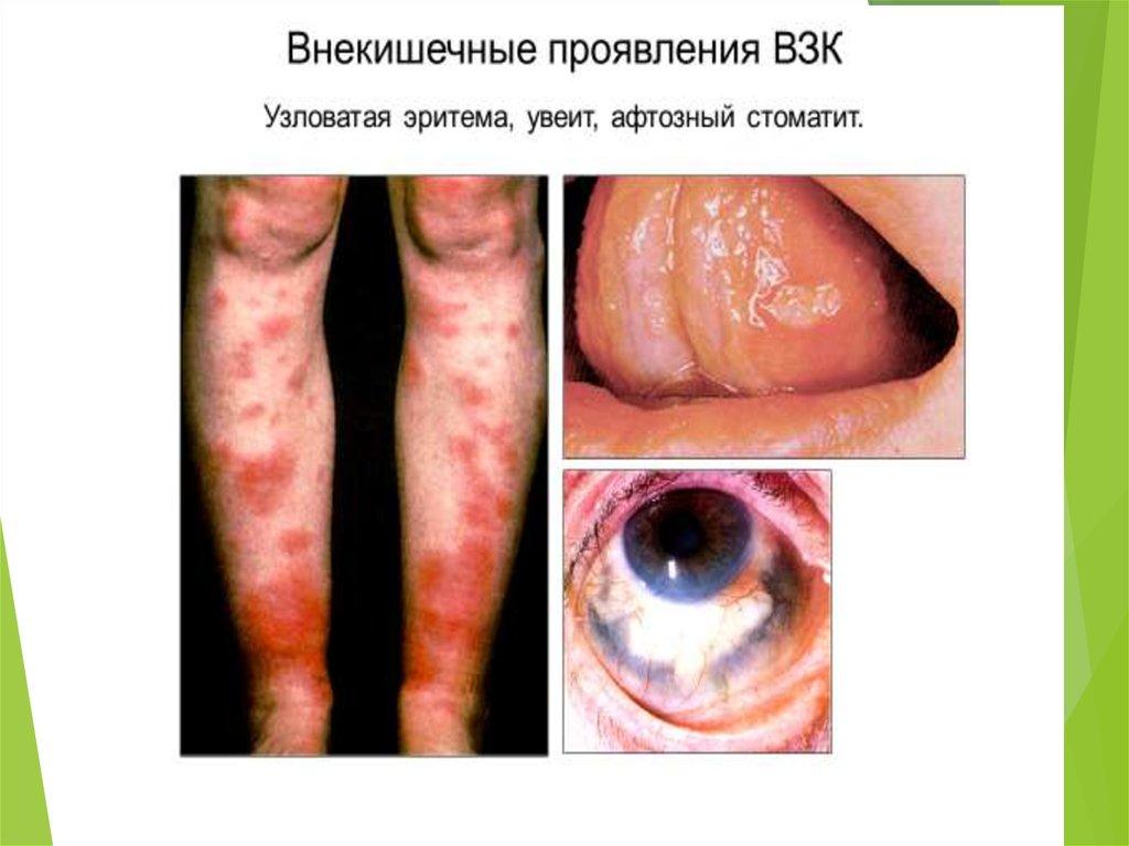 пищевая аллергия на белок лечение