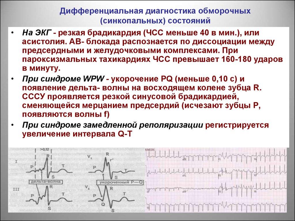 дифференциальная диагностика боли в животе презентация