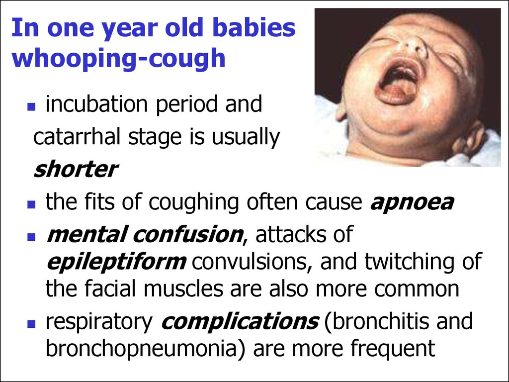 how to stop whooping cough