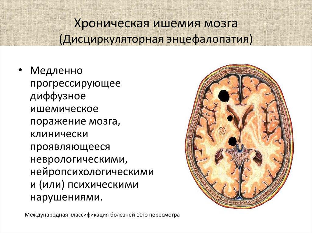 Ишемия головного мозга – симптомы, степени, последствия и ...