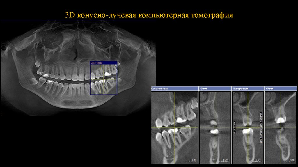 Компьютерная томография зубов электросталь