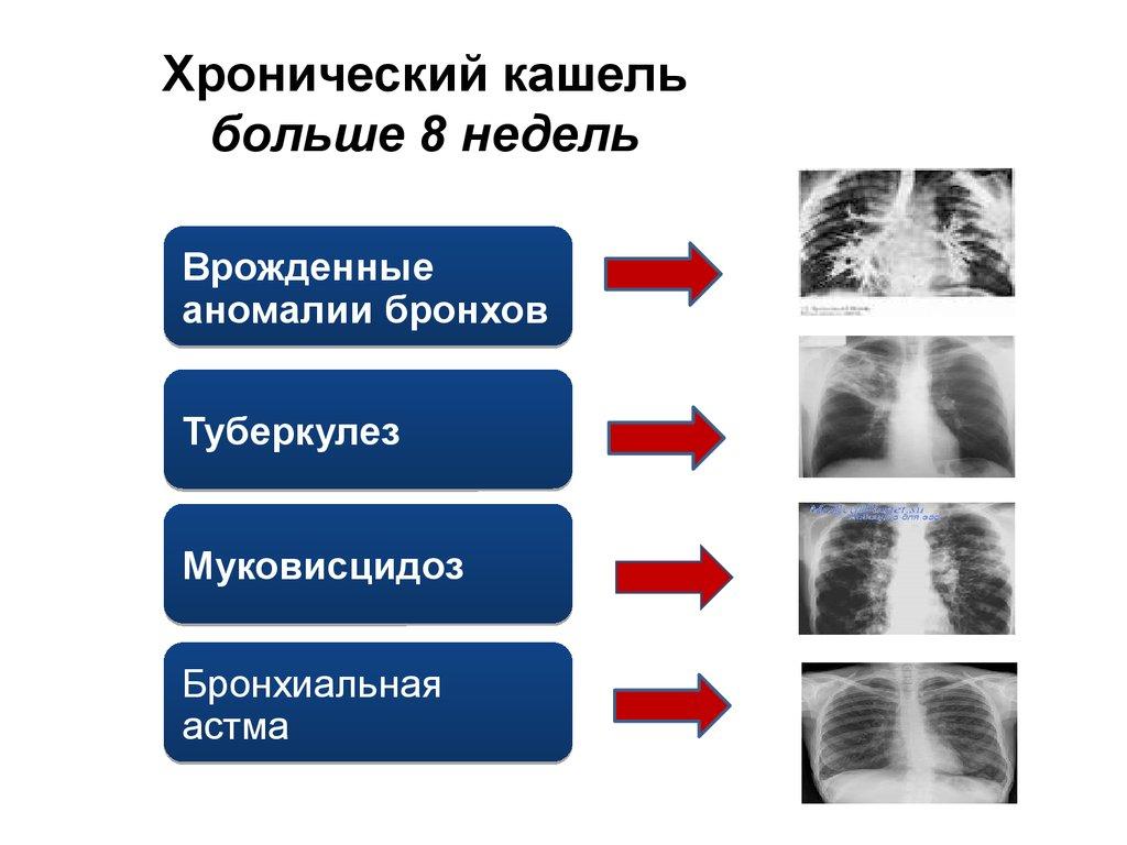 методы выявления аллергии