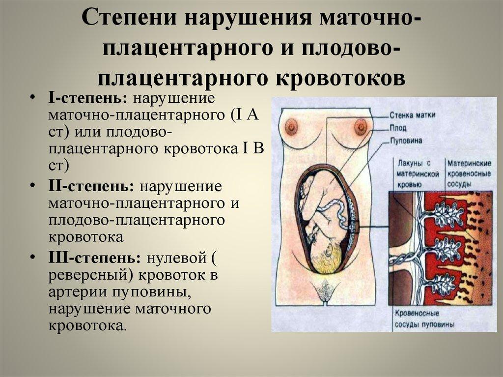 Нарушен кровоток матки при беременности