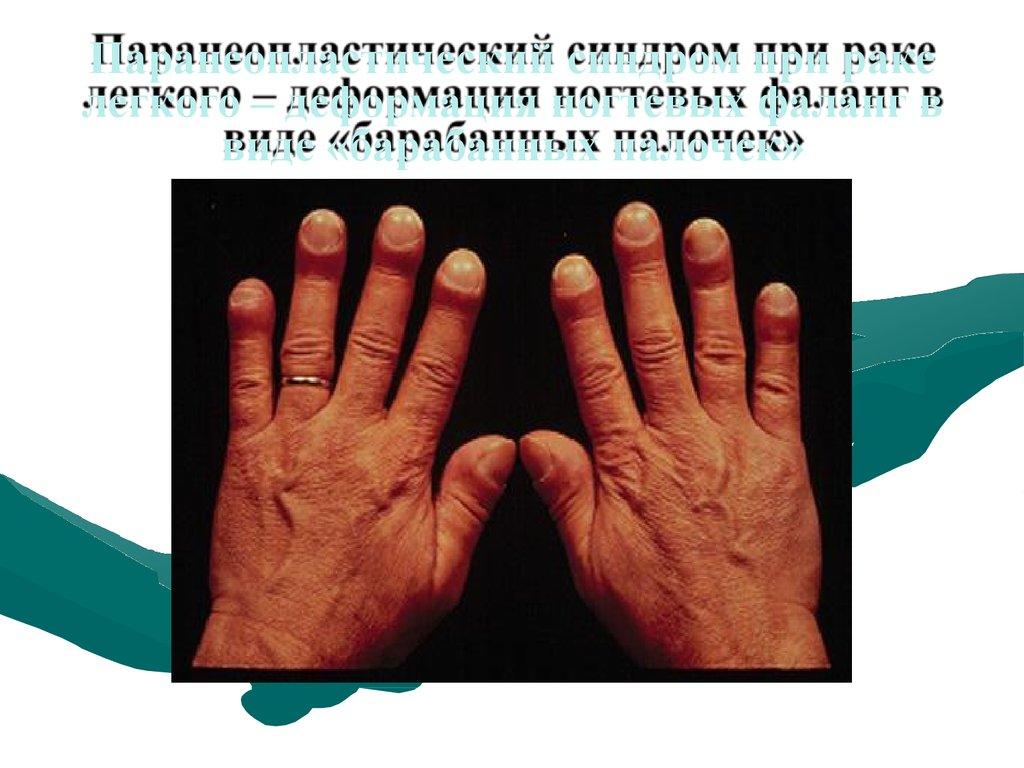 Синдром Паранеопластический