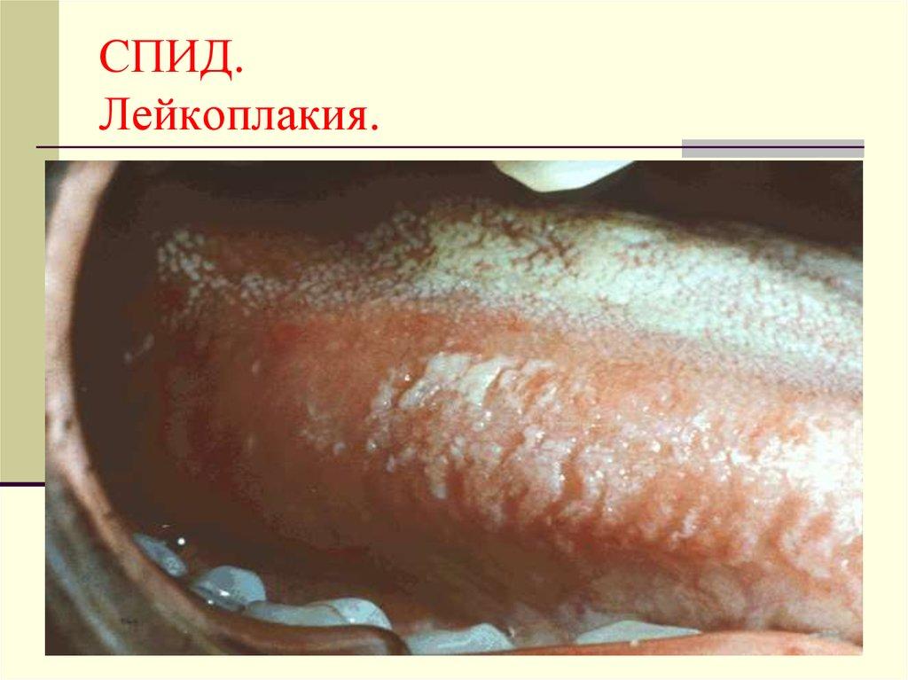 ВИЧ-инфекция. Статистика внутрибольничной заболеваемости - online presentation