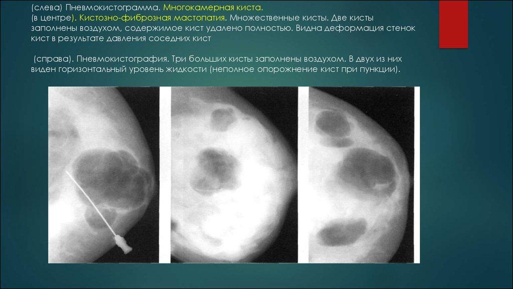 Мастопатия фиброзная, кистозная - лечение, симптомы (Кистозно фиброзная диффузная мастопатия)