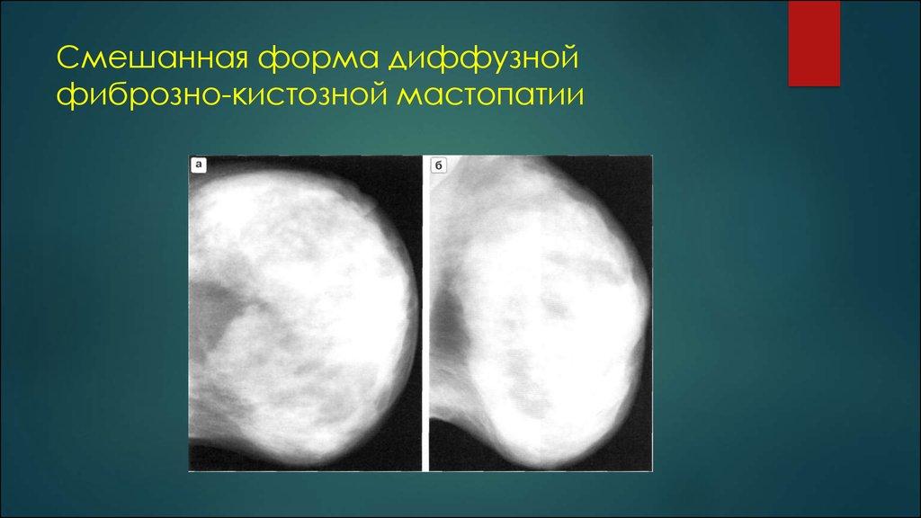 Рентген диагностика заболеваний молочной железы - презентация онлайн