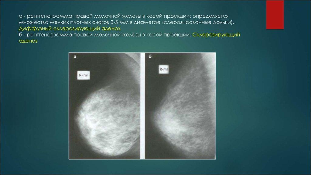 Картинки: МКБ 10 - Доброкачественная дисплазия молочной железы (N60) (Картинки)