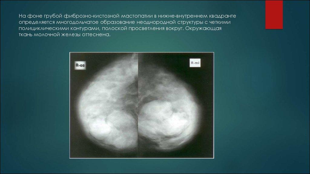 Картинки: Фиброзно-кистозная мастопатия : причины, симптомы (Картинки)