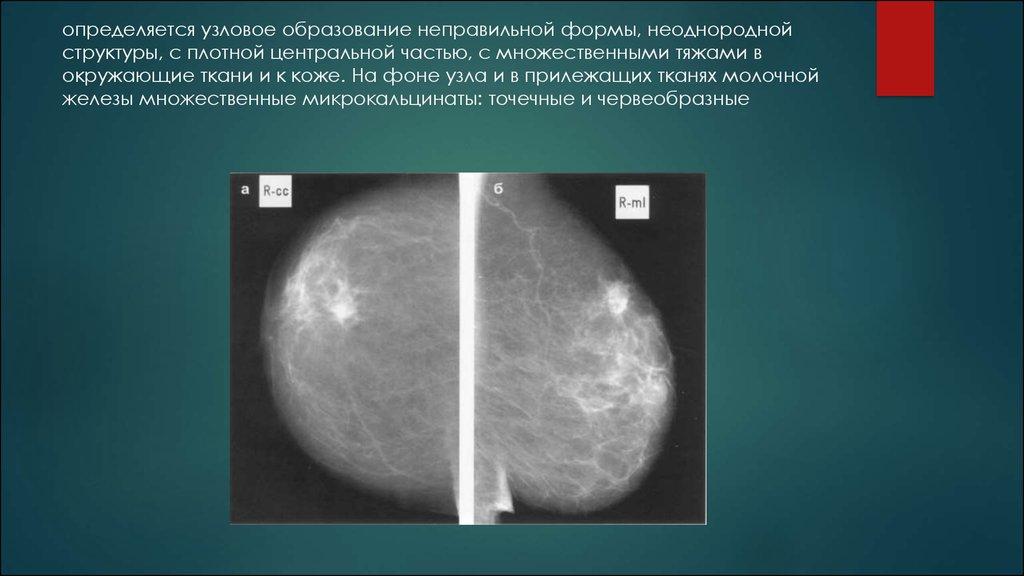 Картинки: Мастопатия лечение Фиброзная мастопатия Кистозная (Картинки)