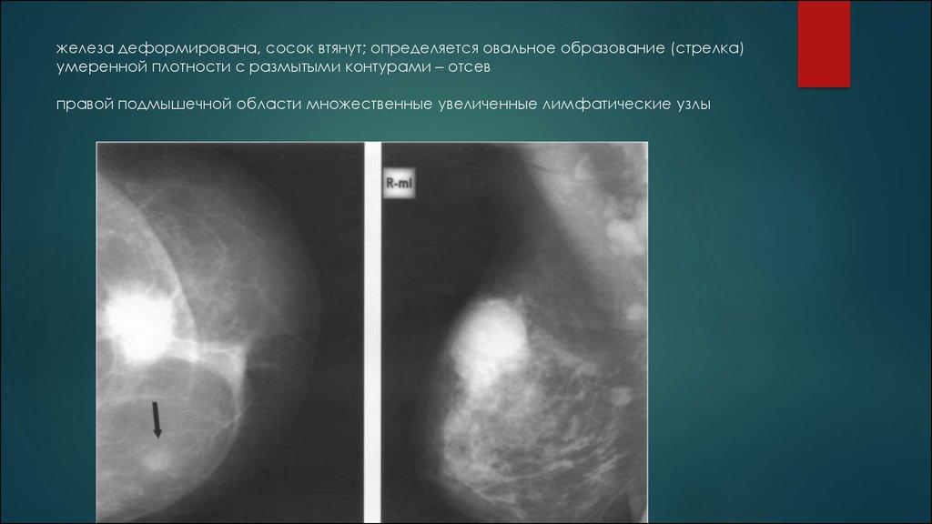 Диффузная фиброзно -кистозная мастопатия