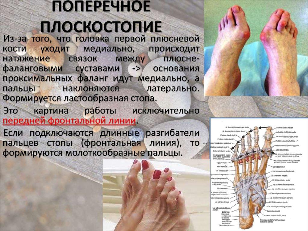 Оперативное лечение геморроя аппарат