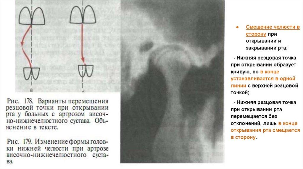 Жалобы при стираемости зубов