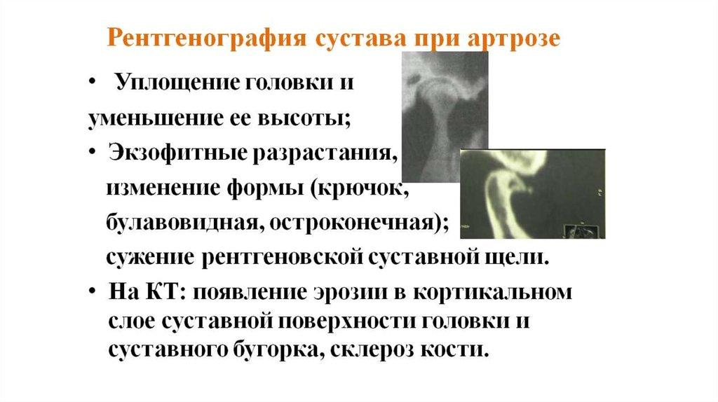 реферат артрозы внчс