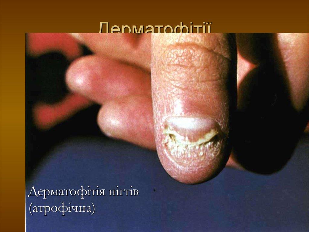 Фото грибок поражение ногтях