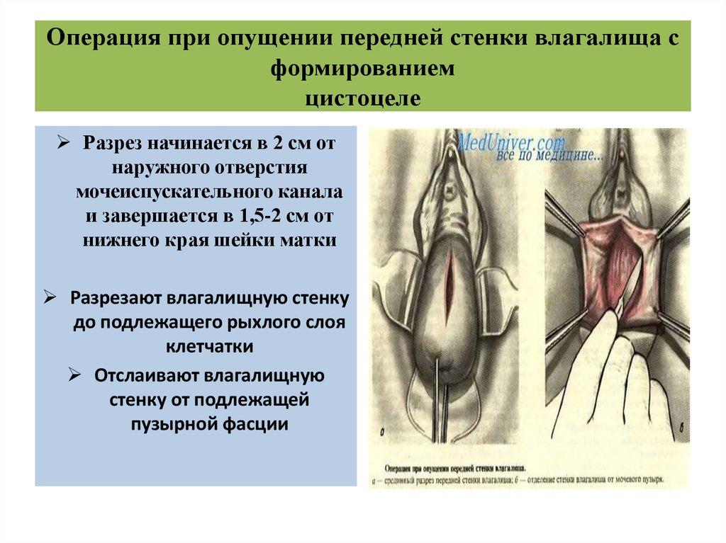 sbornik-kompilyatsiya-narezka-patsan-vilizivaet-vaginu