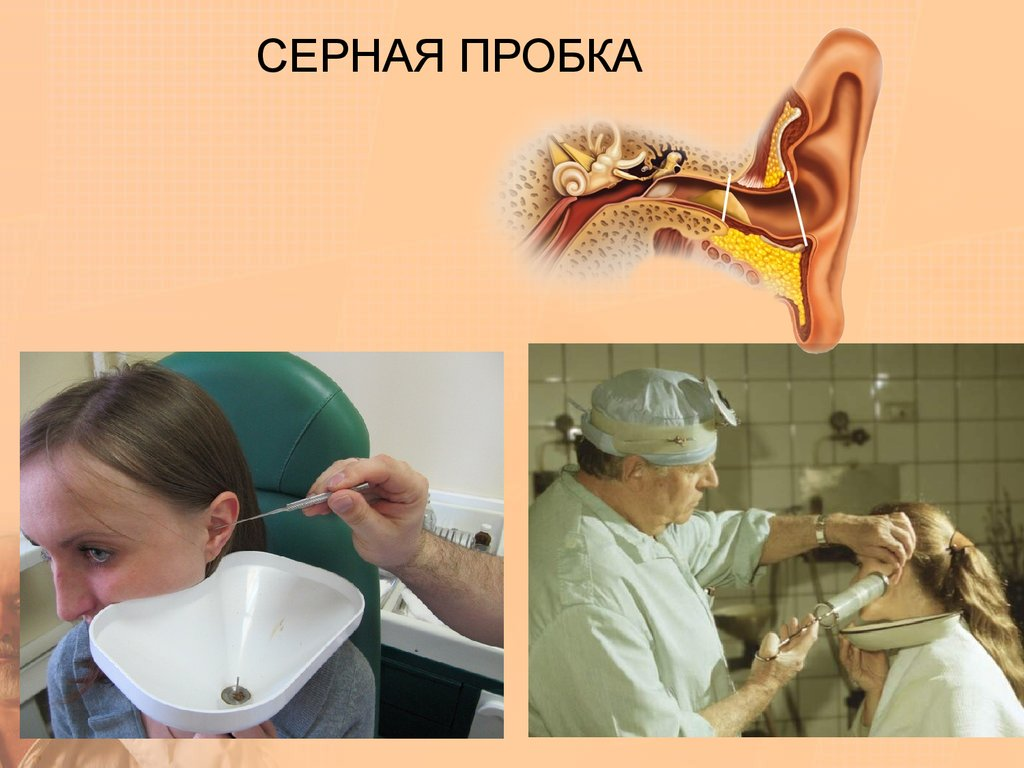 Как вычистить уши от пробок в домашних условиях 688