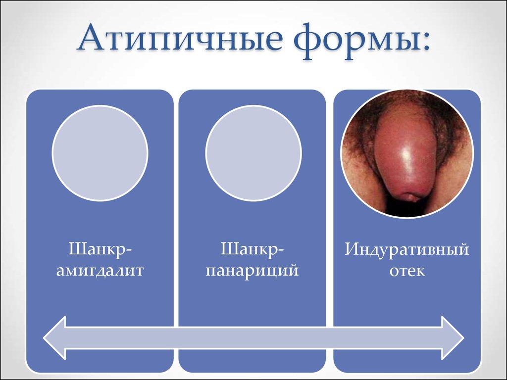 презентация на тему заболевание пинта