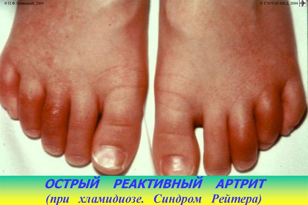 Диагностика проблем околосуставных тканей пальцев, ксс. ревматические заболевания.