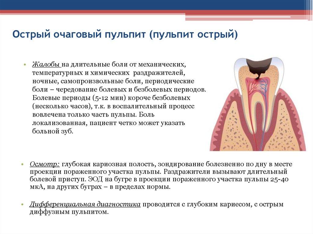 Заболел зуб это пульпит