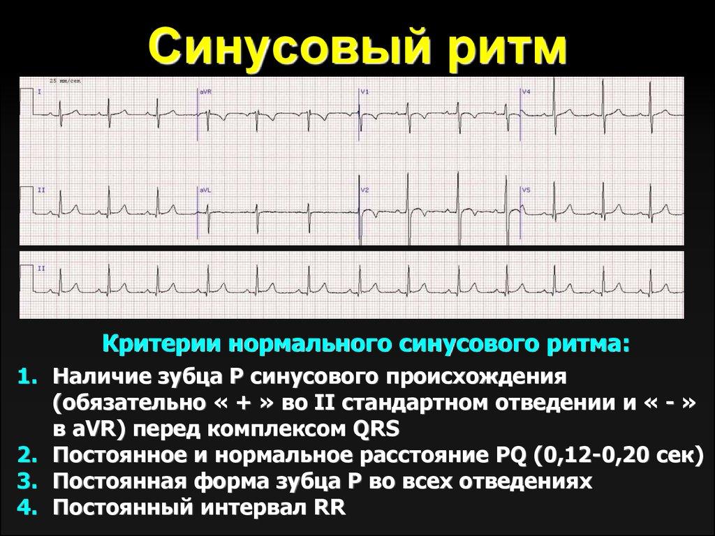Синусовый ритм сердца норма у беременных 65